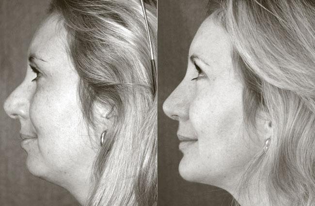 Cheek bone and chin re-profiling